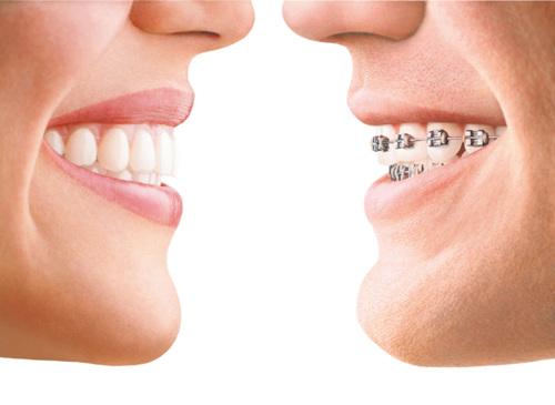 - Dentaduras - Puentes fijos y removibles - Ortodoncia - Cirugía Dental