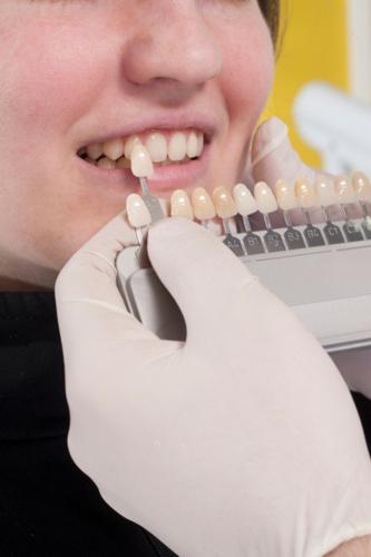 Blanqueado dental, rehabilitación oral, corrección de dientes en mal posición, educación y prevención de enfermedades orales, manejo de conducta negativa al tratamiento dental.