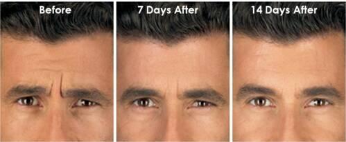• Fototerapia • Psoriasis • Vitiligo • Picazón urémico  Productos anti-envejecimientos como:  • Botox • Dysport • Restylane • Tratamientos Antienvejecimiento