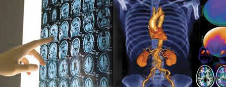 Whole Body Pet/CT Scan, Thyroid Uptake and Scan
