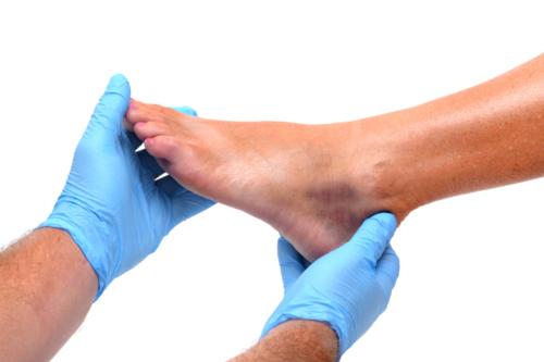 • Cirugía Avanzada del Pie • Tratamiento de Pie Diabético • Espuelones • Juanetes • Verrugas • Pie Plano  • Uñas encarnadas • Dedos de martillo • Lesiones • Hongos