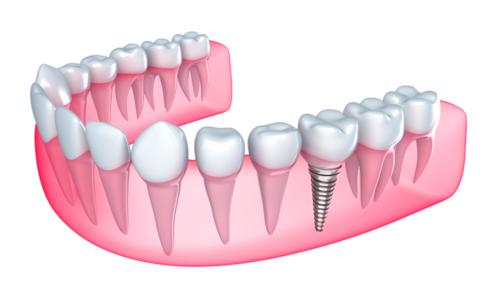 Clínica Y Laboratorio Dental Toa Alta Heights