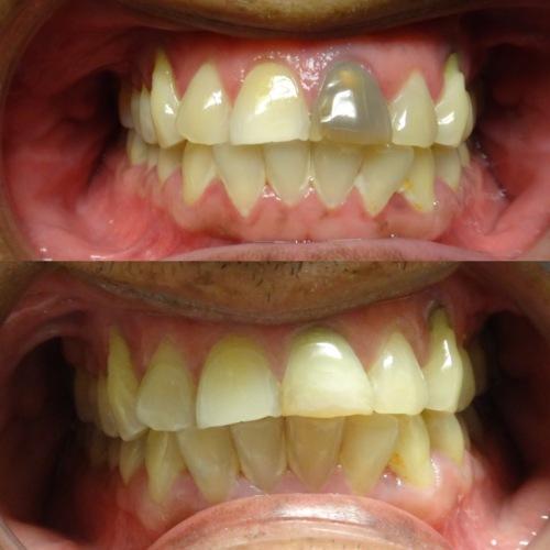 """- Radiografía digital - Impresiones digitales (iTero Intraoral Scanner) - Implantes Dentales - Blanqueamiento dental - Puentes Fijos y coronas estéticas - Invisalign - Restauraciones estéticas en resina - Tratamiento de canal (""""root canals"""") - Atendemos niños, adolescentes y adultos."""