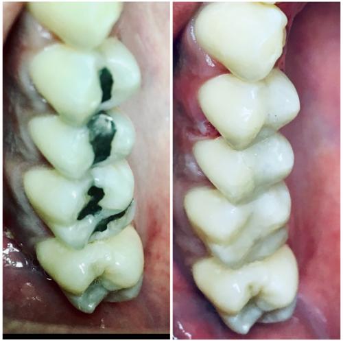 •Cirujano dentista • Odontologia general •Odontologia cosmetica - laminados , coronas y puentes fijos en zirconia , restauraciones en resina en dientes anteriores y en molares , puentes removibles sin metal •Implantes - tratamiento completo , colocación de implante y su restauración con coronas fijas en zirconia, puentes fijos en zirconia, dentaduras y puentes removibles semi fijos a implantes, laminados en zirconia o porcelana, aumento de hueso para colocación de implantes •Graduado de la escuela de odontología de Boston University (Boston University Dental School), certificado en implantes de la universidad de New York (NYU Dental School)  •Puentes removibles sin usar ganchos en metal, puentes removibles en acrilico suave y liviano sin base en metal •Toda restauración empezada y terminada por el dentista •No recomendamos mercurio en restauraciones (plata - amalgama)